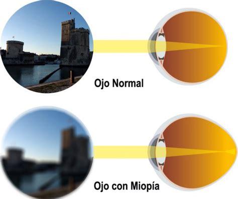 miopía 3